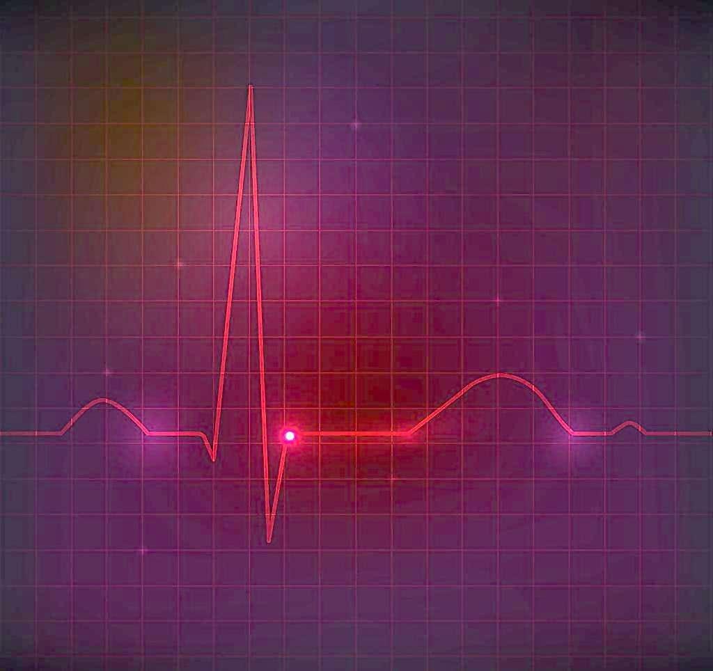 快速读懂心电图