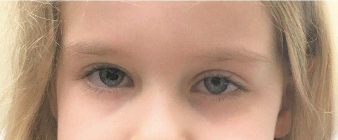 有奖病例竞猜第200期丨小女孩突然头痛、吃不下东西,仔细一看瞳孔怎么一大一小了?