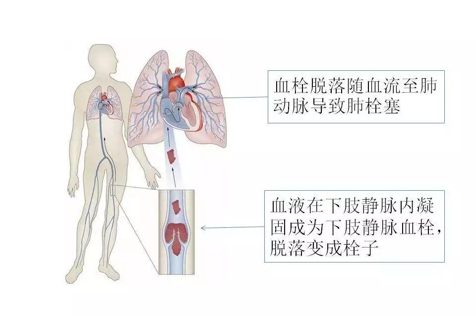 警惕隐形的杀手——静脉血栓栓塞症